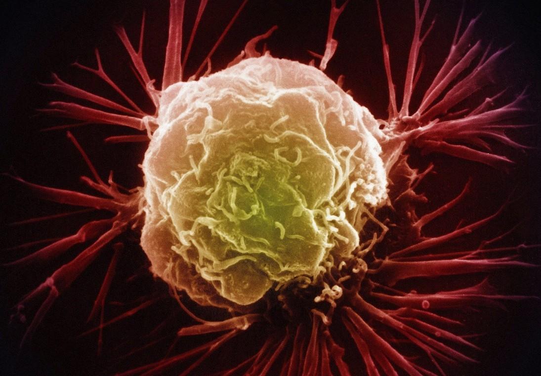 5 способов проверить себя на рак